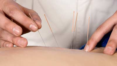 Acupuncture treatment with needles